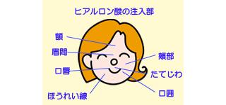 ヒアルロン酸注入部